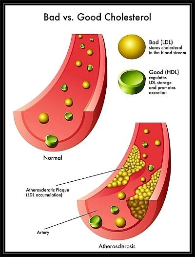 LDL Cholesterol vs HDL Cholesterol