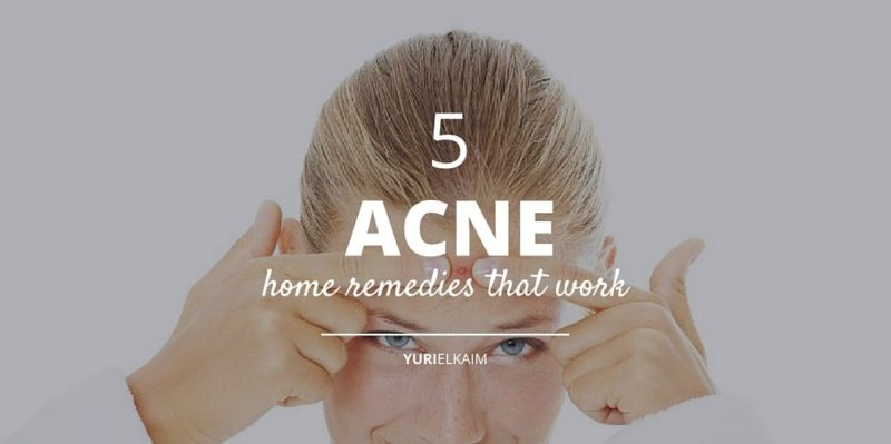 5 Home Remedies for Acne More People Should Know