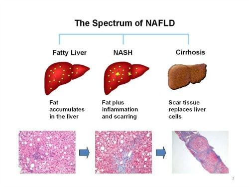 spectrum-of-nafld