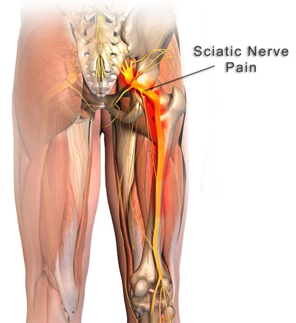 sciatic-nerve-and-nerve-pain