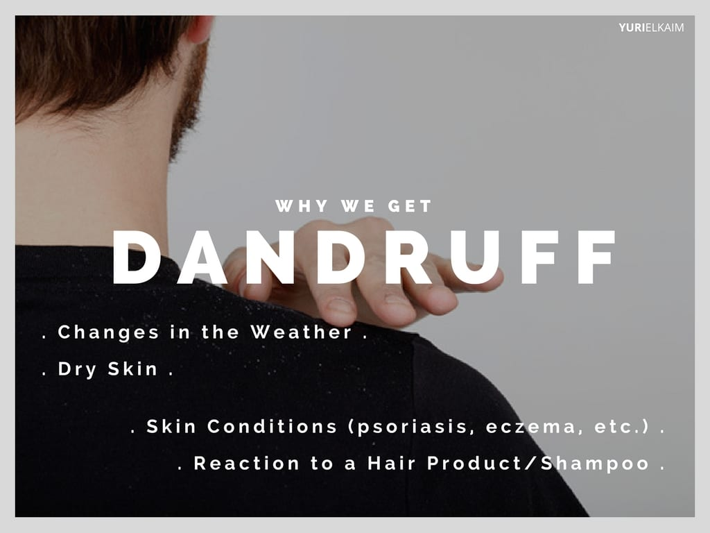 Why We Get Dandruff
